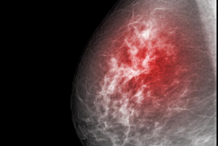 Ginecomastia pode ser câncer? Fique atento